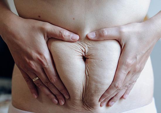 Raffermir son ventre après la grossesse